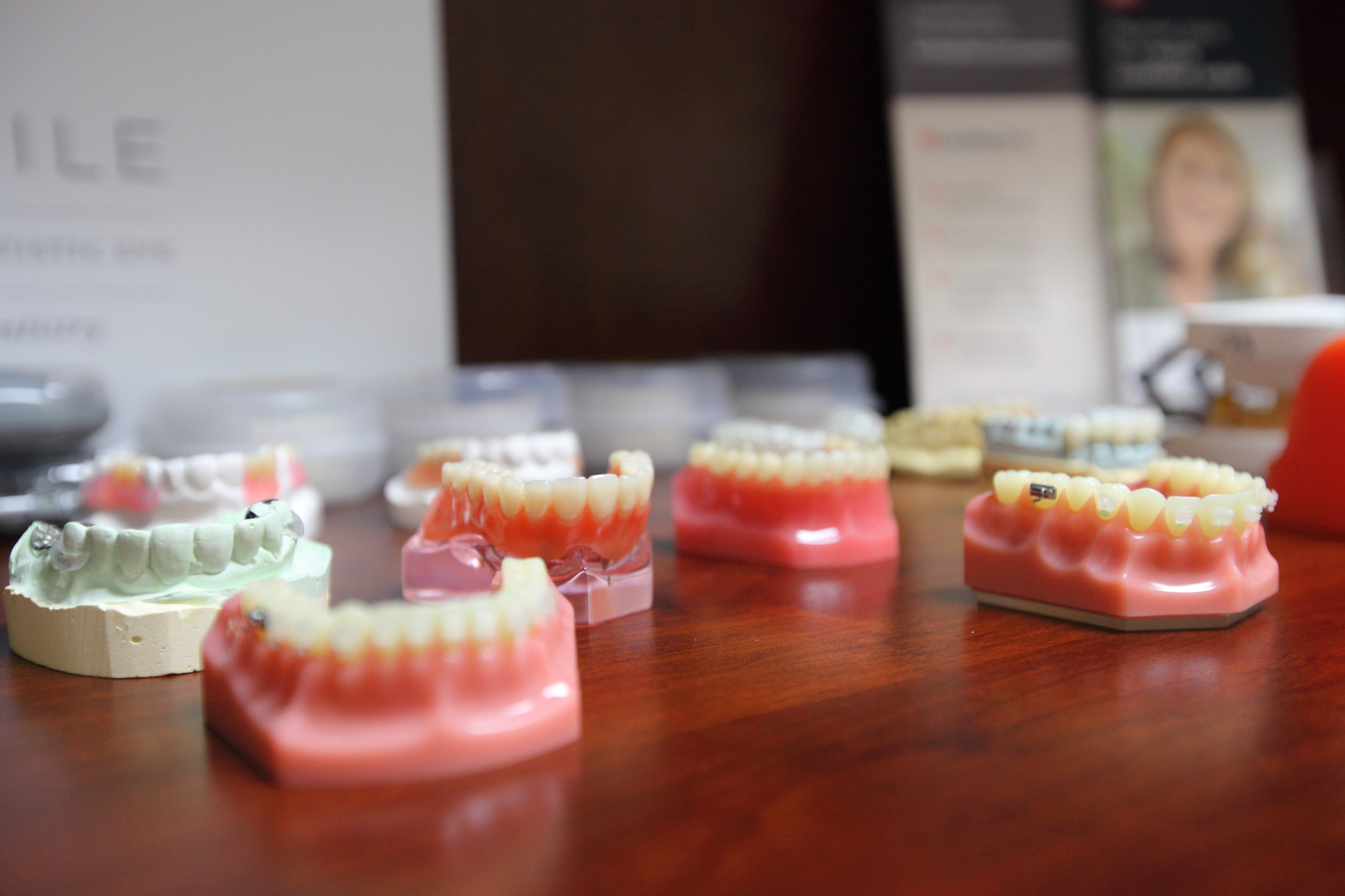 models of teeth from Kelly Smile in Victorville, CA