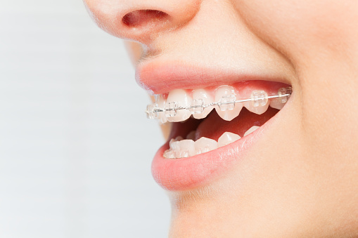Taking Care of Your Teeth After Adult Braces